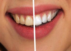 faccette dentali Castel d'Aiano prima e dopo